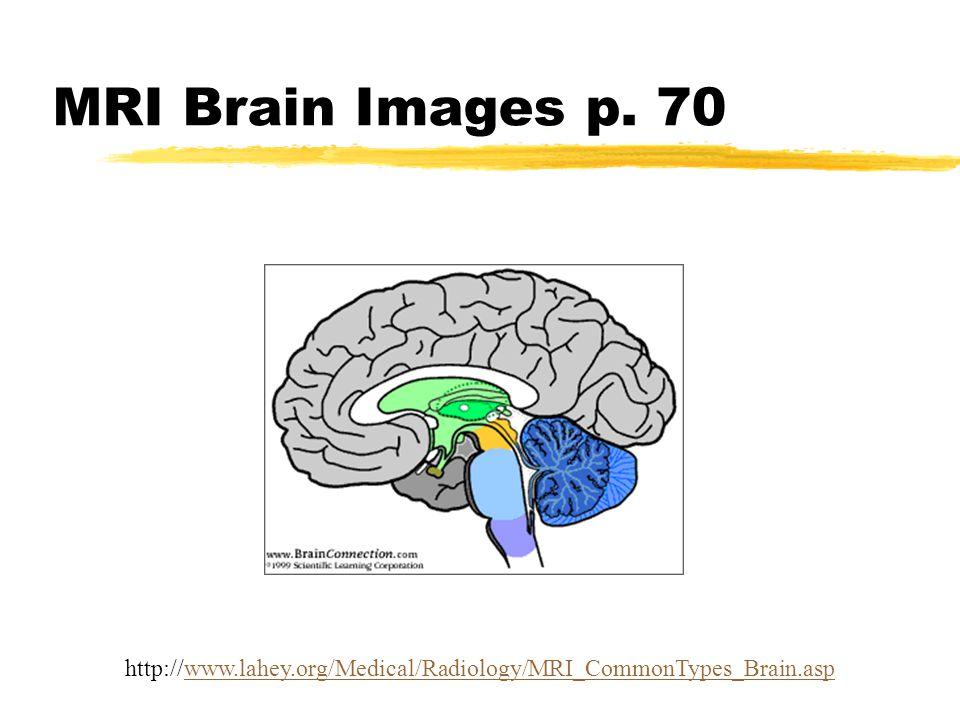 MRI Brain Images p. 70 http://www.lahey.org/Medical/Radiology/MRI_CommonTypes_Brain.aspwww.lahey.org/Medical/Radiology/MRI_CommonTypes_Brain.asp