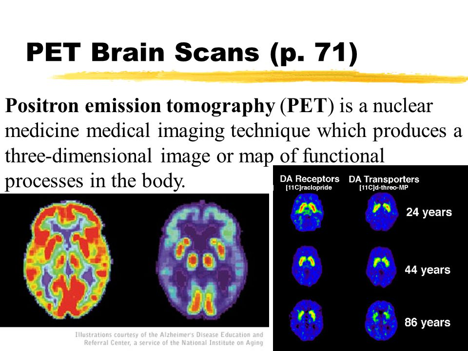 PET Brain Scans (p. 71) Positron emission tomography (PET) is a nuclear medicine medical imaging technique which produces a three-dimensional image or