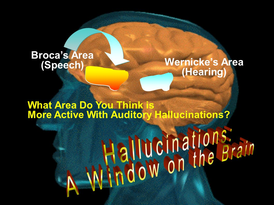Broca's Area (Speech) Wernicke's Area (Hearing) What Area Do You Think is More Active With Auditory Hallucinations?
