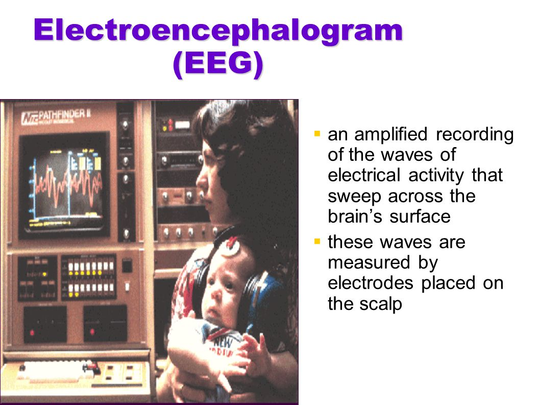 Electroencephalogram (EEG)  an amplified recording of the waves of electrical activity that sweep across the brain's surface  these waves are measur