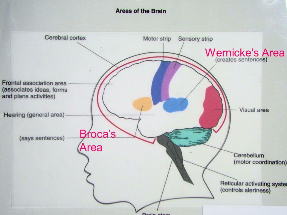 © West Educational Publishing Broca's Area Wernicke's Area