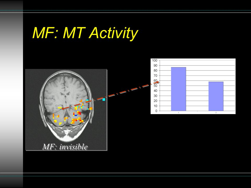MF: MT Activity MF: invisible