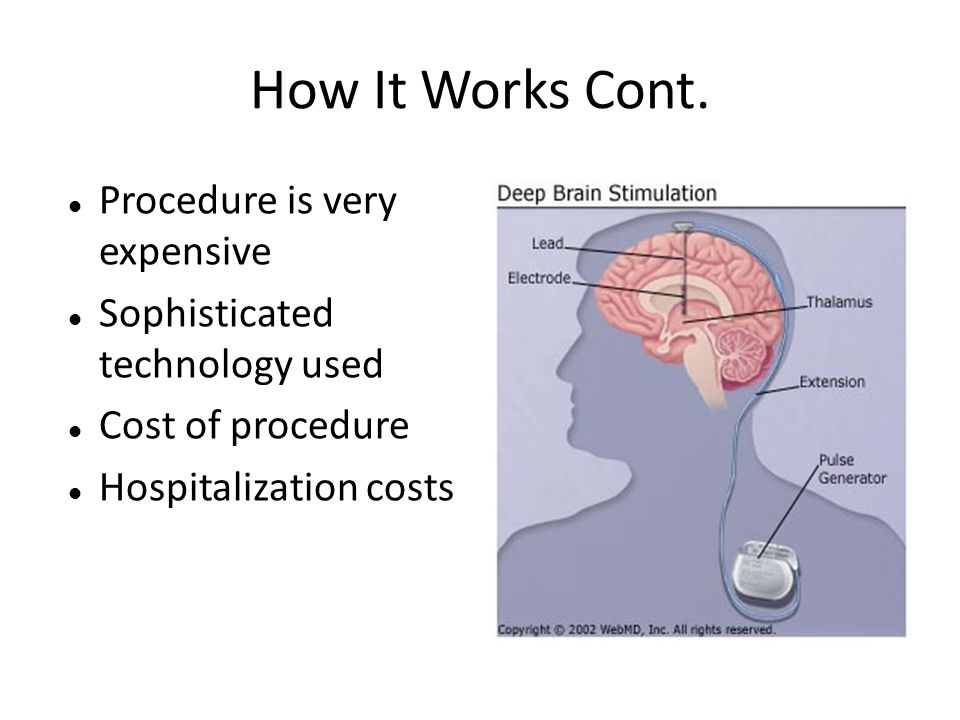 How It Works Cont. Procedure is very expensive Sophisticated technology used Cost of procedure Hospitalization costs