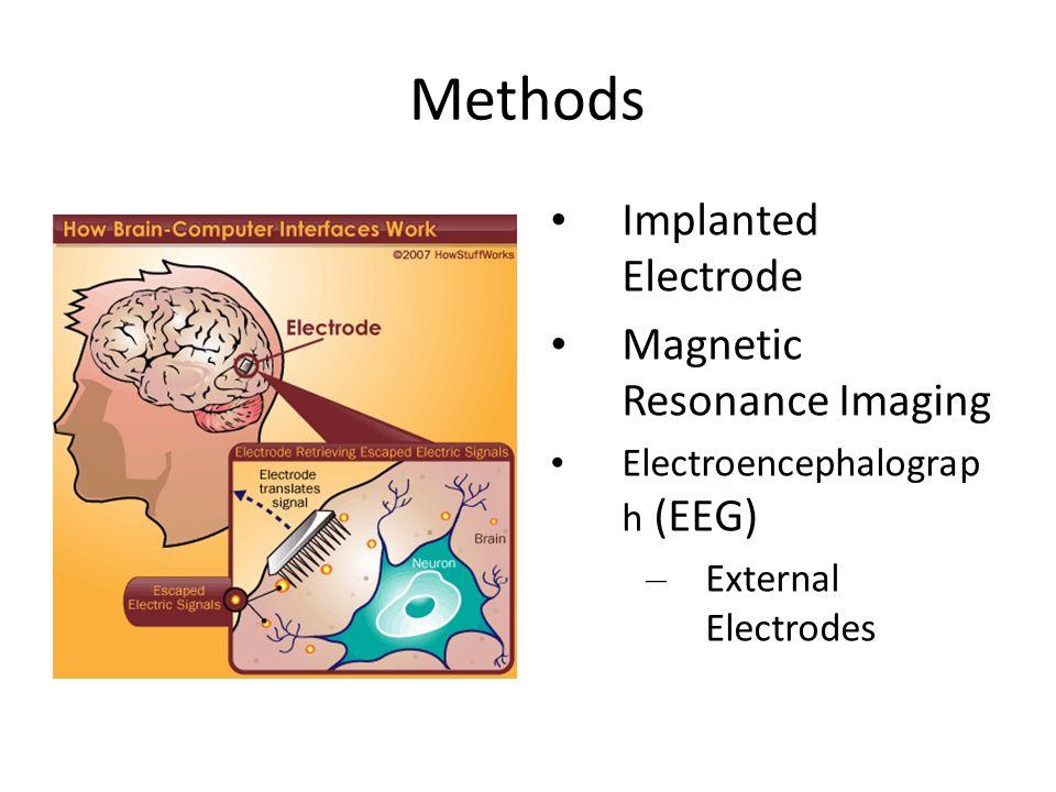 Methods Implanted Electrode Magnetic Resonance Imaging Electroencephalograp h (EEG) – External Electrodes