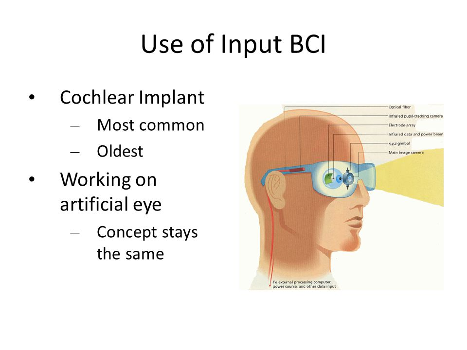 Use of Input BCI Cochlear Implant – Most common – Oldest Working on artificial eye – Concept stays the same