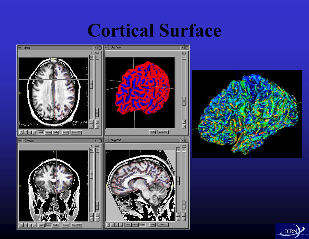 Cortical Surface
