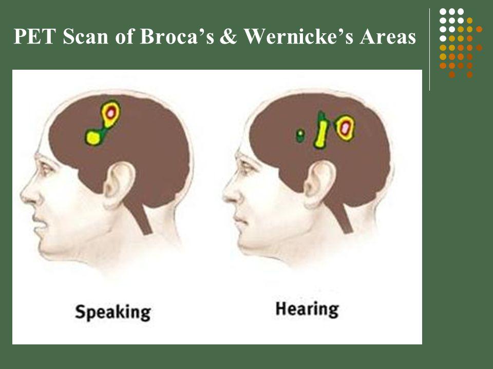 PET Scan of Broca's & Wernicke's Areas
