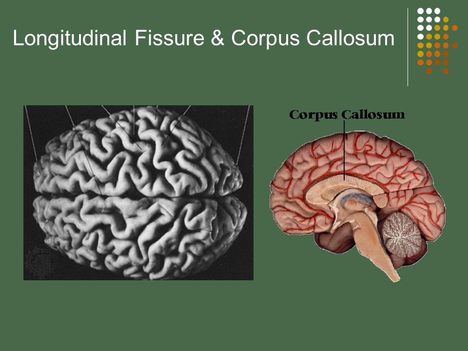 Longitudinal Fissure & Corpus Callosum