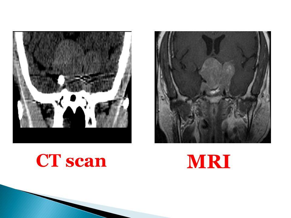 CT scan MRI