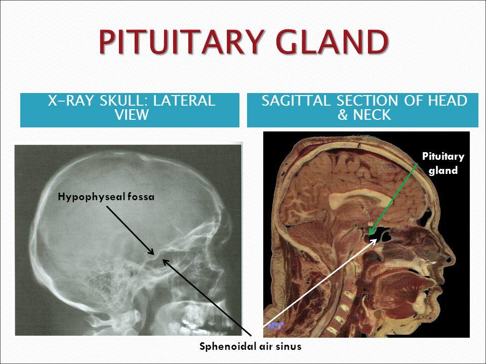 1 2 3 4 5 6 1-Optic sulcus 2- Anterior clinoid process 3-Floor of sella turcia (Pituitary fossa) 4- Posterior clinoid process 5- Dorsum sella 6- Sphenoid sinus