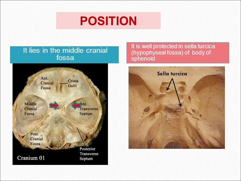 optic chiasma mamillary bodies  it lies between optic chiasma (anteriorly) & mamillary bodies (posteriorly).