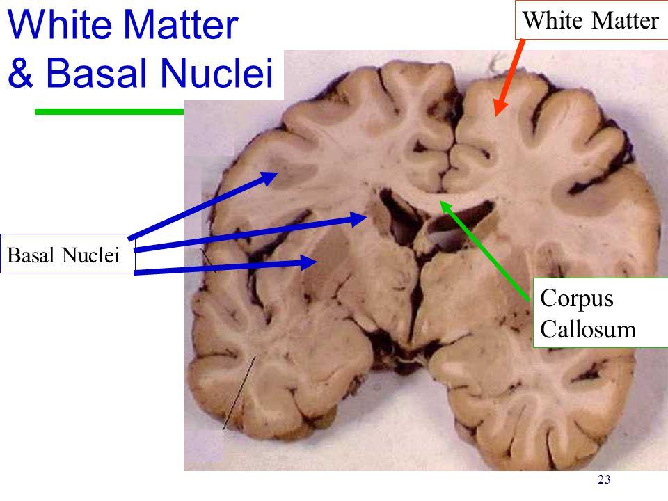 23 White Matter & Basal Nuclei White Matter Basal Nuclei Corpus Callosum