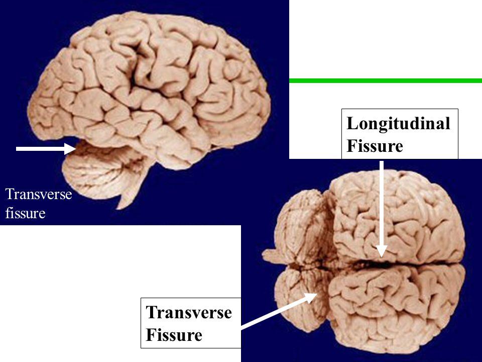 26 Transverse fissure Longitudinal Fissure Transverse Fissure