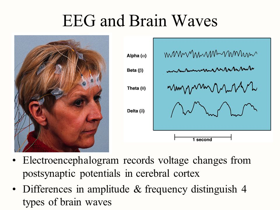 EEG and Brain Waves Electroencephalogram records voltage changes from postsynaptic potentials in cerebral cortex Differences in amplitude & frequency