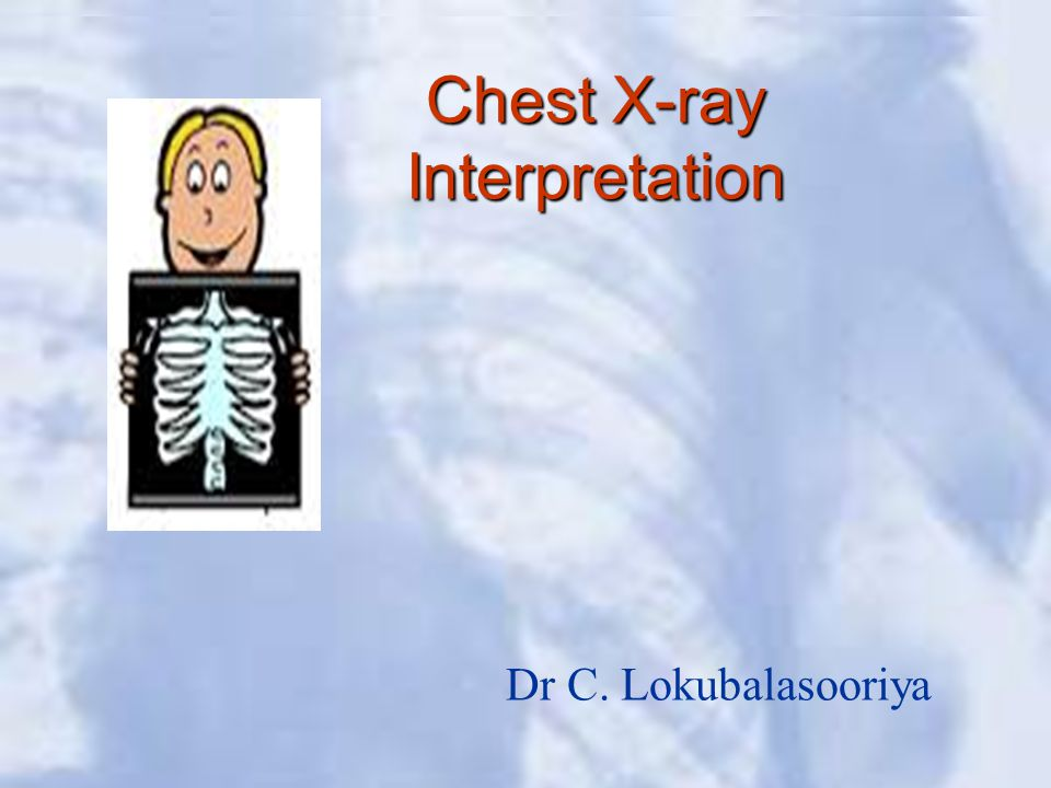 Chest X-ray Interpretation Dr C. Lokubalasooriya