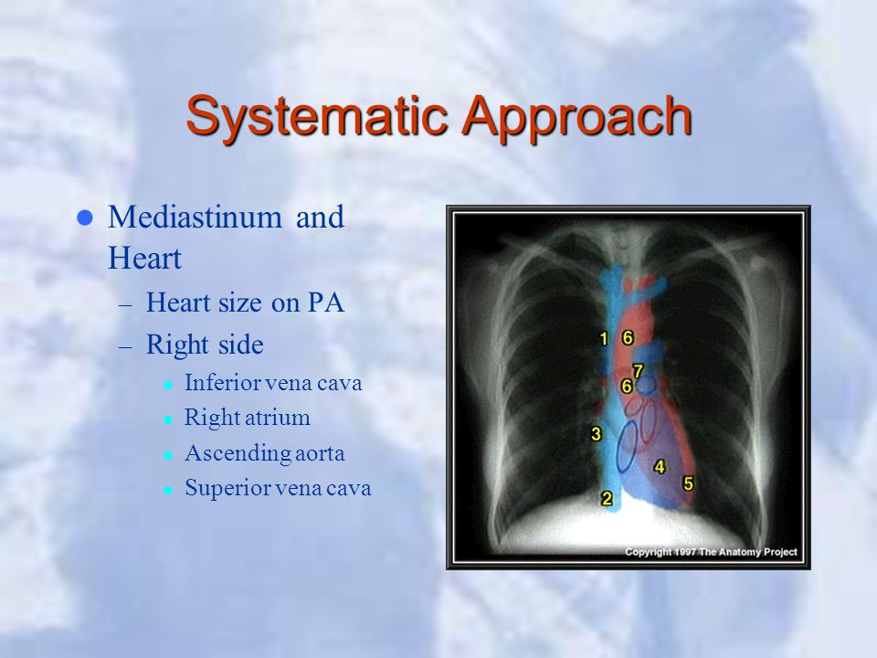Systematic Approach Mediastinum and Heart – Heart size on PA – Right side Inferior vena cava Right atrium Ascending aorta Superior vena cava