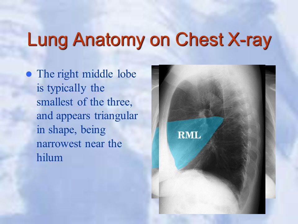 Lung Anatomy on Chest X-ray The right middle lobe is typically the smallest of the three, and appears triangular in shape, being narrowest near the hi