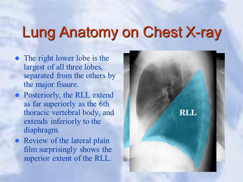 Lung Anatomy on Chest X-ray The right lower lobe is the largest of all three lobes, separated from the others by the major fissure. Posteriorly, the R