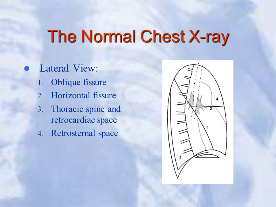 The Normal Chest X-ray Lateral View: 1. Oblique fissure 2. Horizontal fissure 3. Thoracic spine and retrocardiac space 4. Retrosternal space