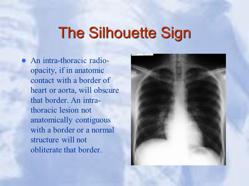 The Silhouette Sign An intra-thoracic radio- opacity, if in anatomic contact with a border of heart or aorta, will obscure that border. An intra- thor