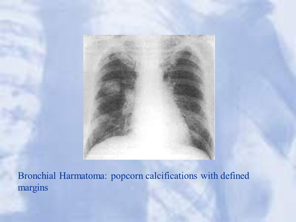 Bronchial Harmatoma: popcorn calcifications with defined margins
