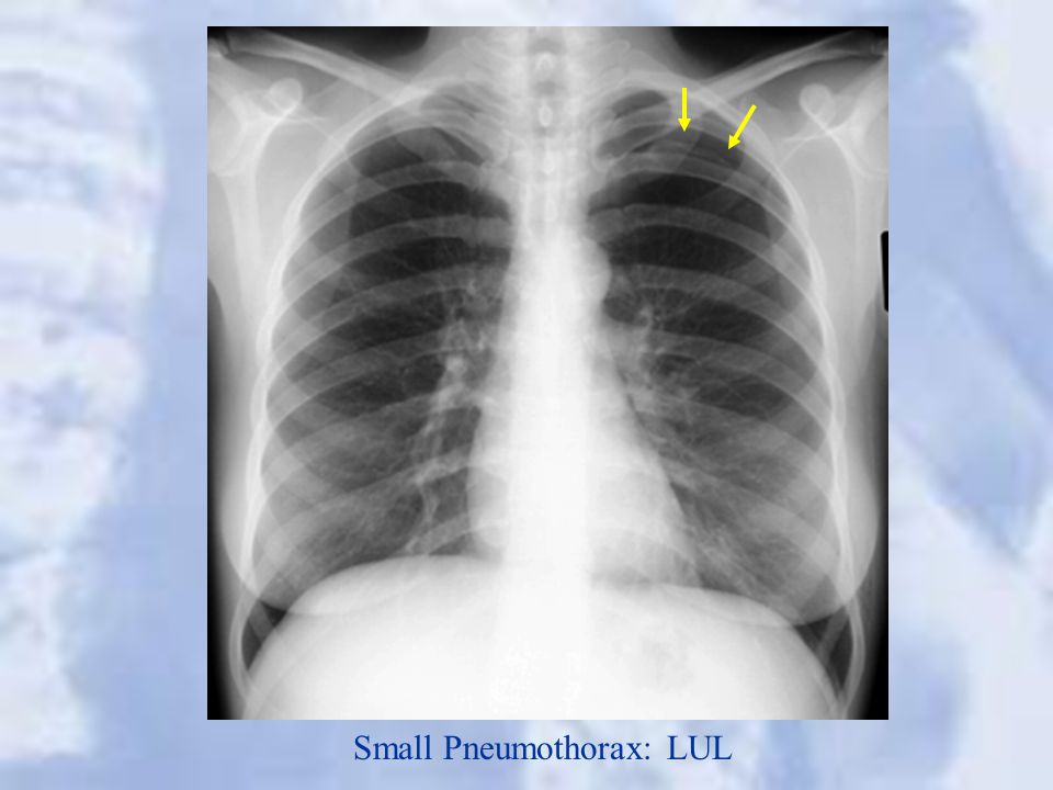 Small Pneumothorax: LUL