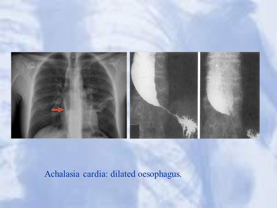 Achalasia cardia: dilated oesophagus.