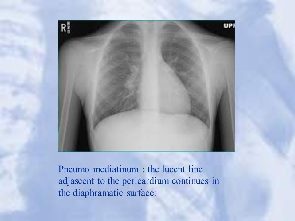 Pneumo mediatinum : the lucent line adjascent to the pericardium continues in the diaphramatic surface: