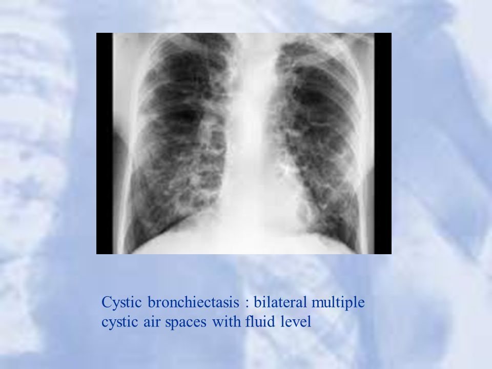 Cystic bronchiectasis : bilateral multiple cystic air spaces with fluid level