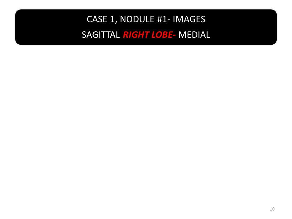 CASE 1, NODULE #1- IMAGES SAGITTAL RIGHT LOBE- MEDIAL 10