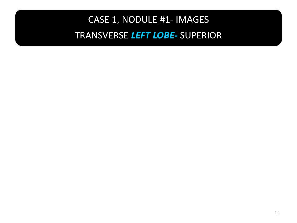 CASE 1, NODULE #1- IMAGES TRANSVERSE LEFT LOBE- SUPERIOR 11