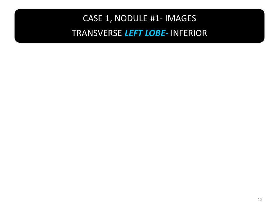 CASE 1, NODULE #1- IMAGES TRANSVERSE LEFT LOBE- INFERIOR 13