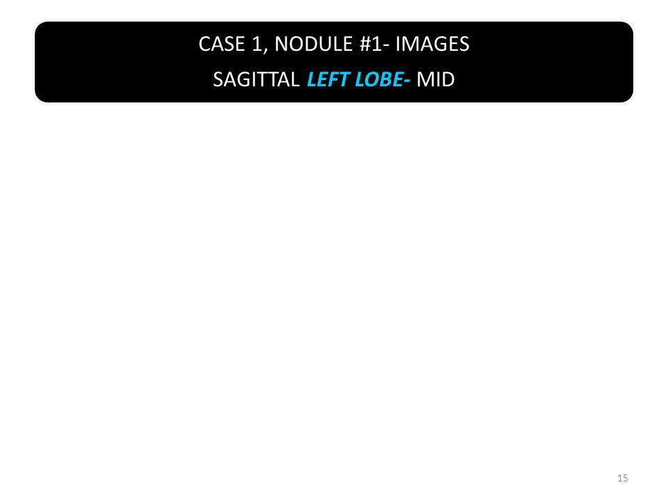 CASE 1, NODULE #1- IMAGES SAGITTAL LEFT LOBE- MID 15