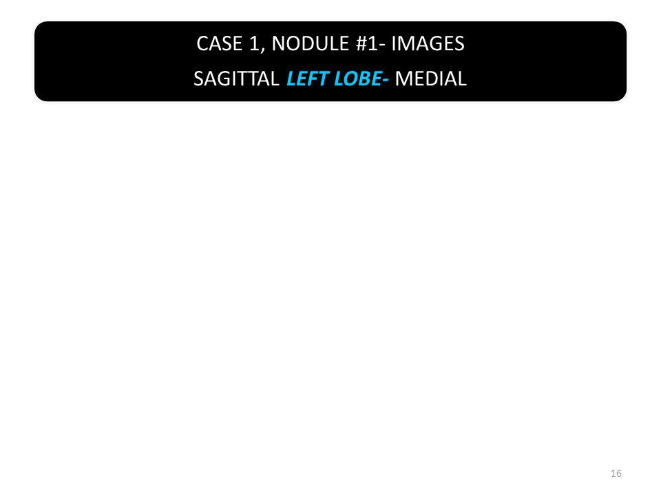 CASE 1, NODULE #1- IMAGES SAGITTAL LEFT LOBE- MEDIAL 16