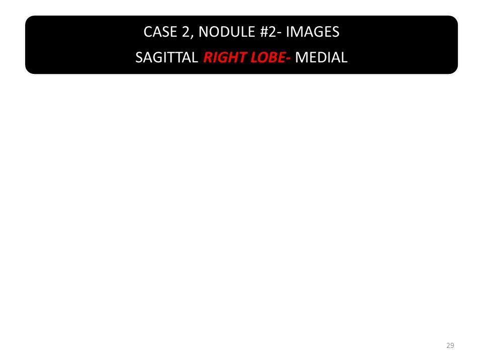 CASE 2, NODULE #2- IMAGES SAGITTAL RIGHT LOBE- MEDIAL 29