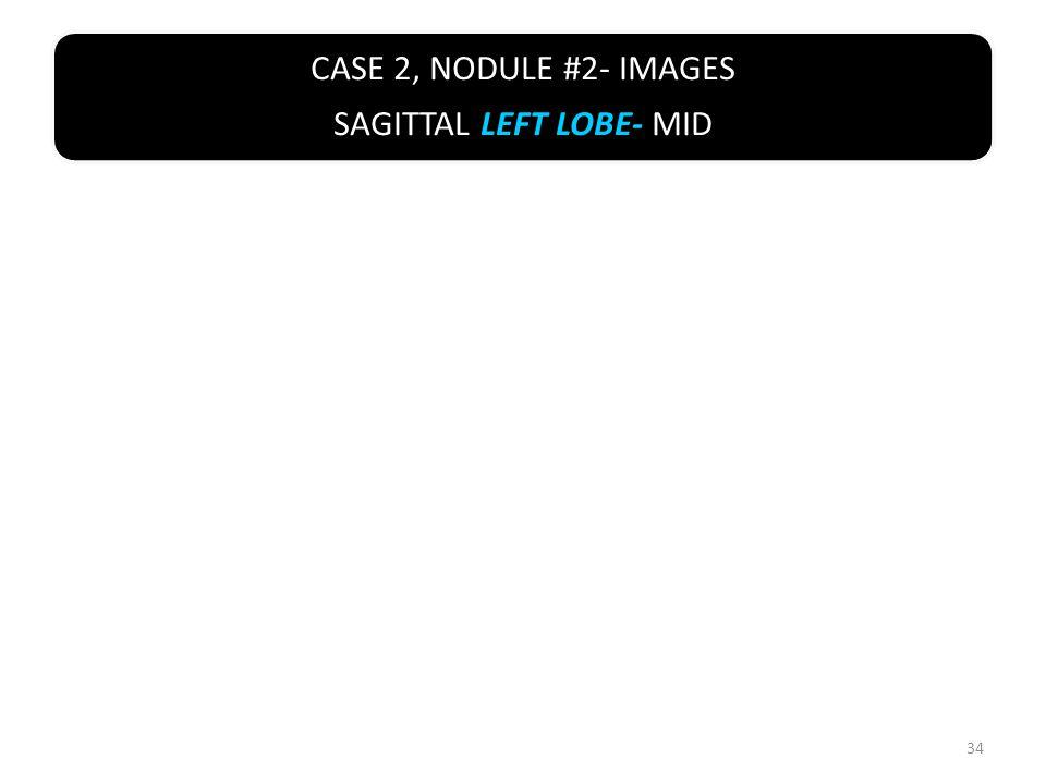CASE 2, NODULE #2- IMAGES SAGITTAL LEFT LOBE- MID 34