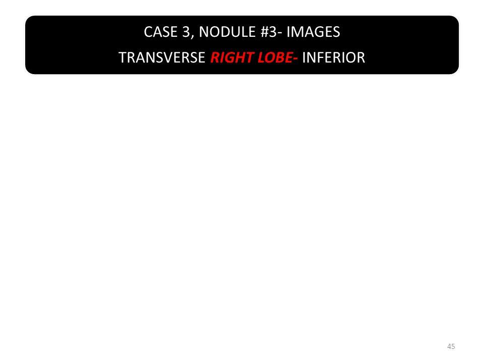 CASE 3, NODULE #3- IMAGES TRANSVERSE RIGHT LOBE- INFERIOR 45