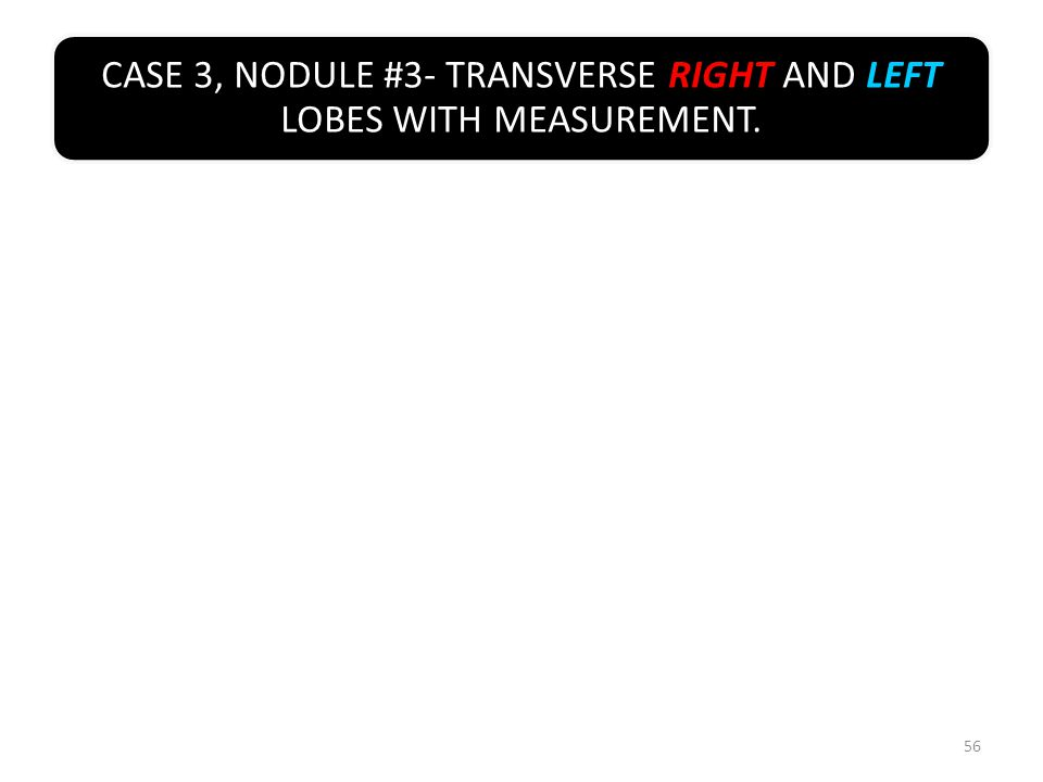 CASE 3, NODULE #3- TRANSVERSE RIGHT AND LEFT LOBES WITH MEASUREMENT. 56