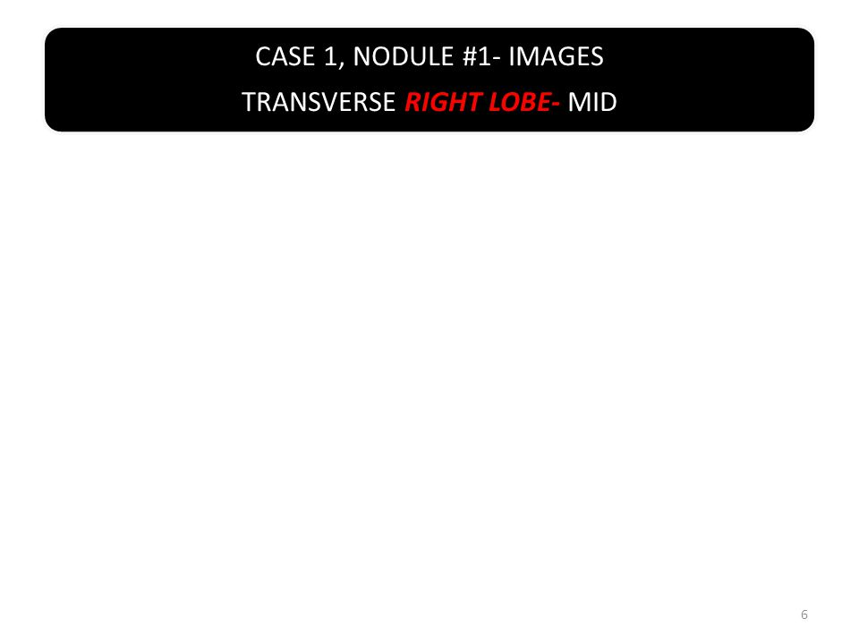 CASE 1, NODULE #1- IMAGES TRANSVERSE RIGHT LOBE- INFERIOR 7