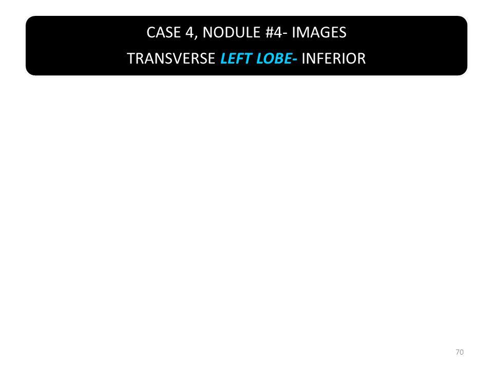 CASE 4, NODULE #4- IMAGES TRANSVERSE LEFT LOBE- INFERIOR 70