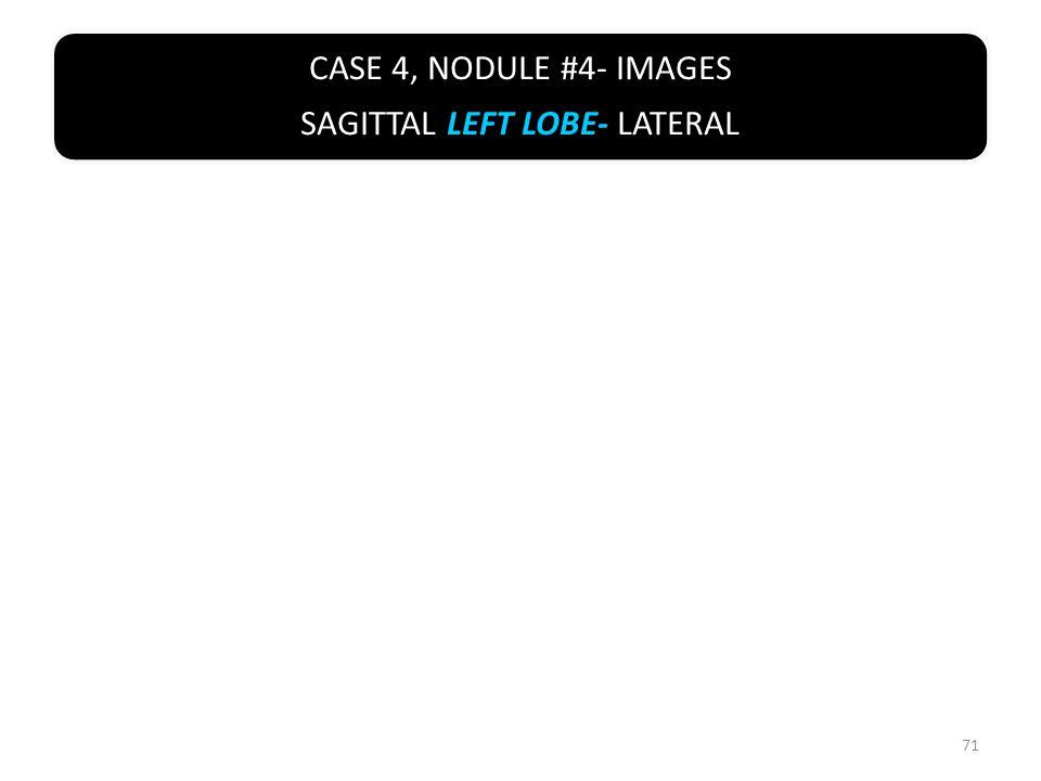 CASE 4, NODULE #4- IMAGES SAGITTAL LEFT LOBE- LATERAL 71