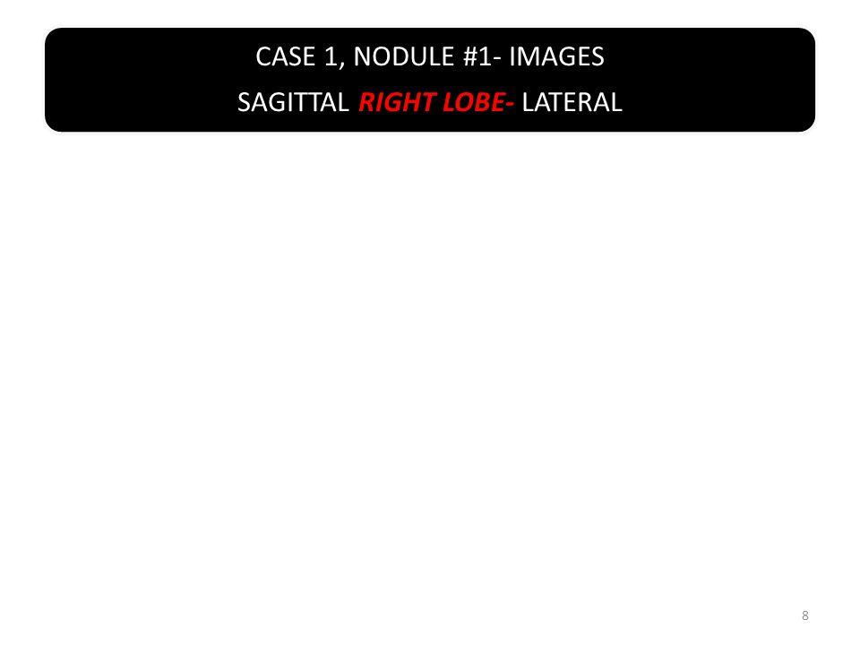 CASE 3, NODULE #3- IMAGES TRANSVERSE LEFT LOBE- SUPERIOR 49