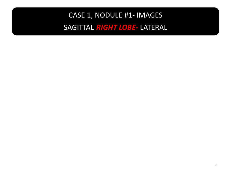 CASE 1, NODULE #1-SAGITTAL/ LONGITUDINAL RIGHT LOBE WITH MEASUREMENT 19