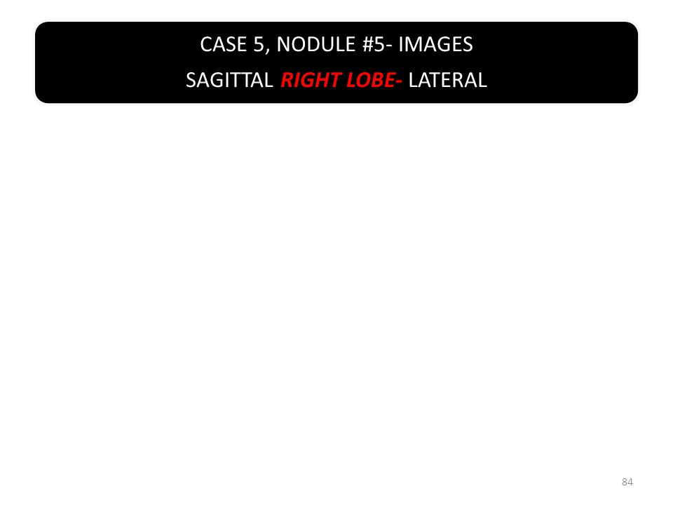 CASE 5, NODULE #5- IMAGES SAGITTAL RIGHT LOBE- LATERAL 84