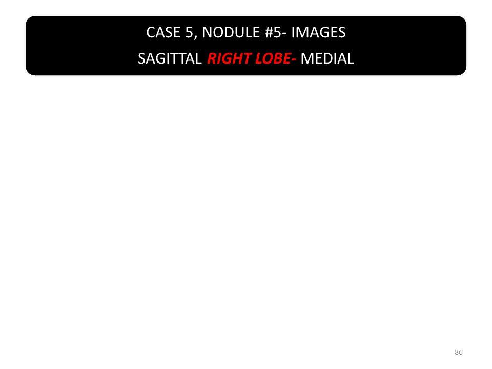 CASE 5, NODULE #5- IMAGES SAGITTAL RIGHT LOBE- MEDIAL 86