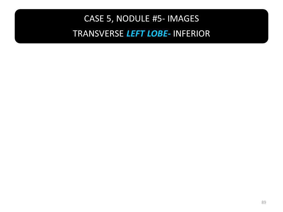 CASE 5, NODULE #5- IMAGES TRANSVERSE LEFT LOBE- INFERIOR 89