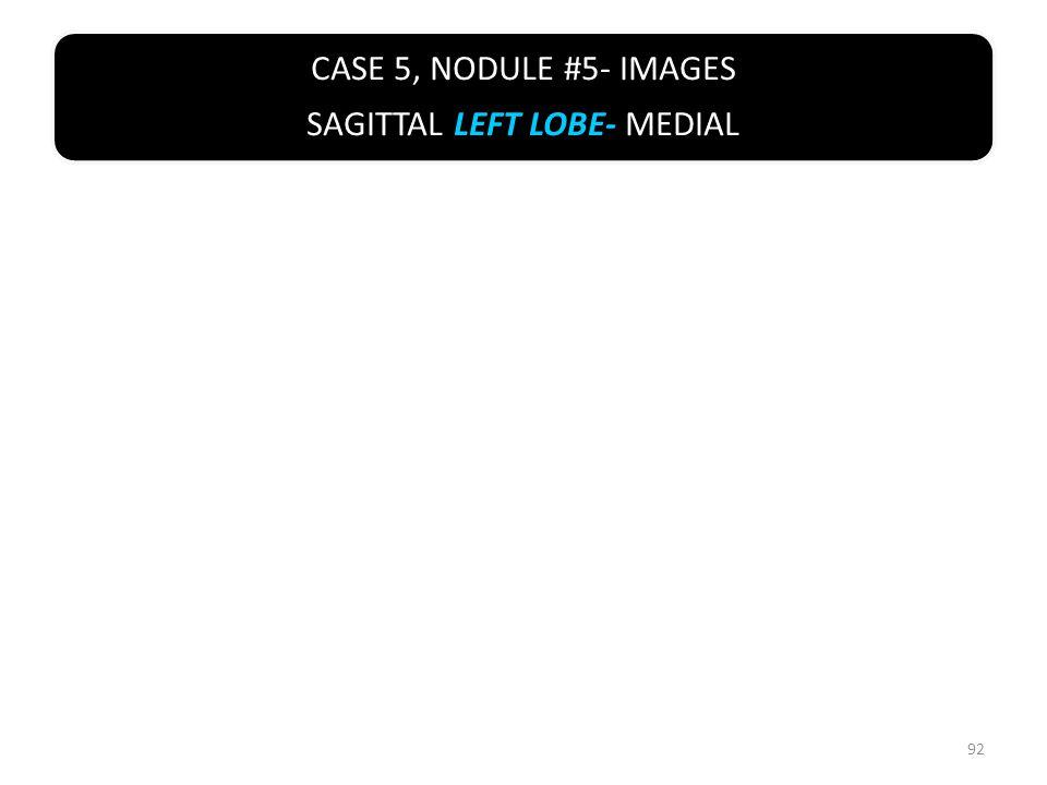CASE 5, NODULE #5- IMAGES SAGITTAL LEFT LOBE- MEDIAL 92