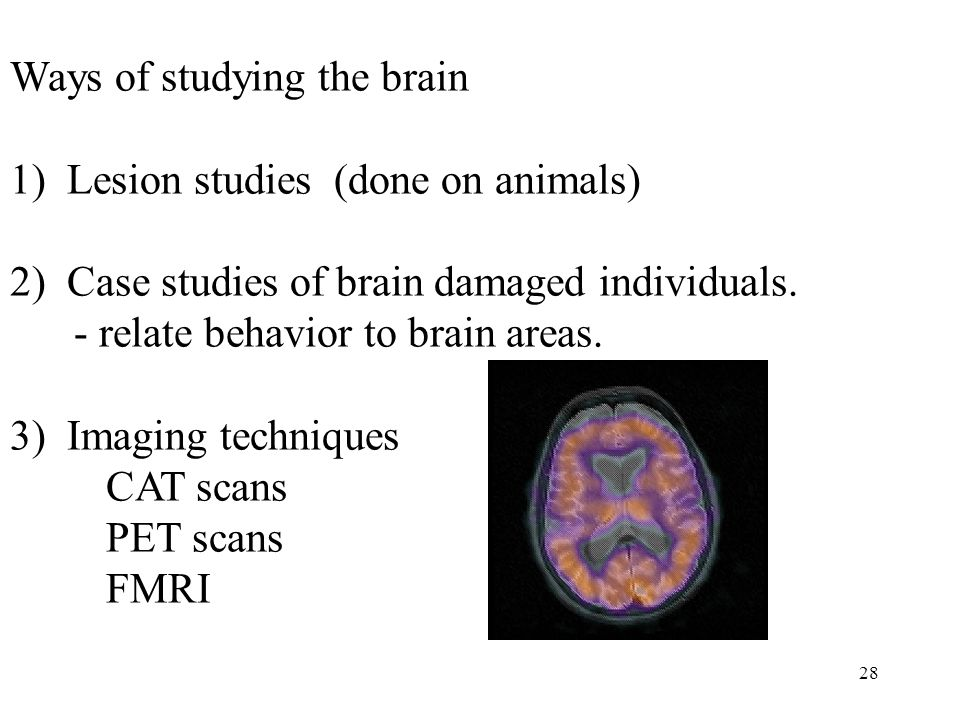 28 Ways of studying the brain 1) Lesion studies (done on animals) 2) Case studies of brain damaged individuals.