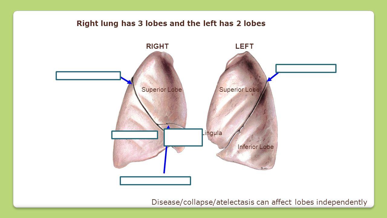 Superior Lobe Inferior Lobe Middle Lobe Superior Lobe Inferior Lobe RIGHTLEFT Oblique fissure Horizontal fissure Oblique fissure Lingula Right lung ha