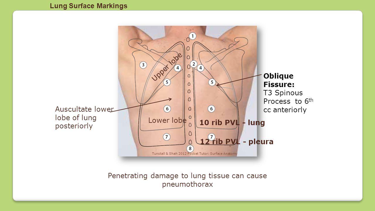 Lung Anatomy Fissures